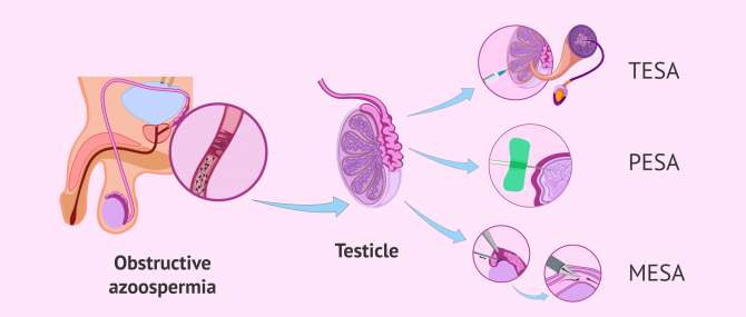Imagen: What are the methods of sperm aspiration?