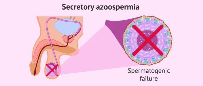 Secretory azoospermia