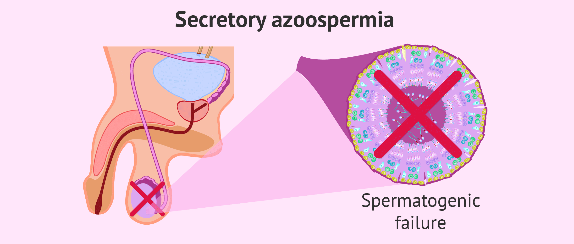 What Is Secretory or Non-Obstructive Azoospermia?