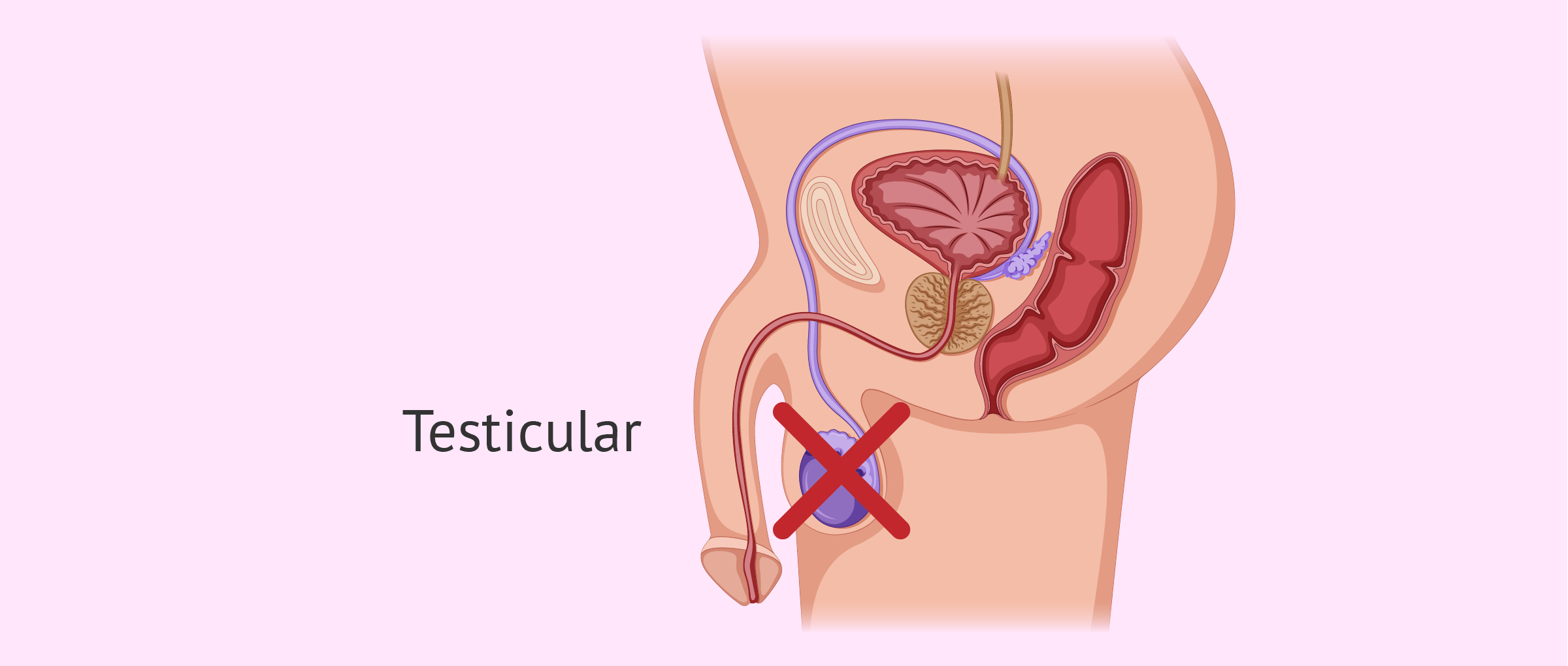 Azoospermia due to testicular causes