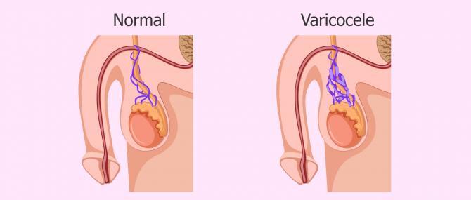 Varicocele and azoospermia