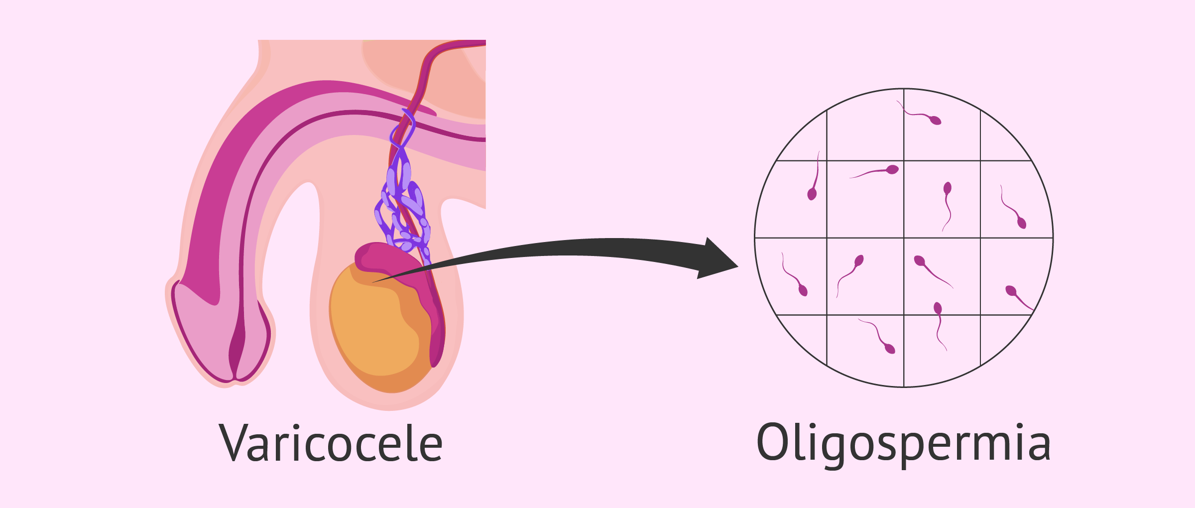 Oligospermia caused by varicocele