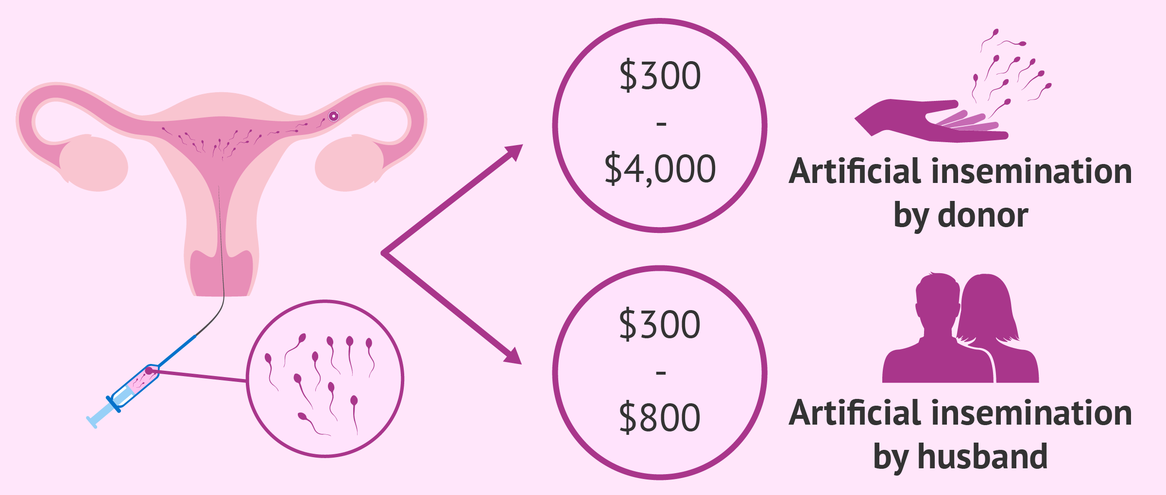 How Much Does Intrauterine Insemination Cost?