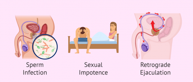 Imagen: Infertility by post-testicular factor