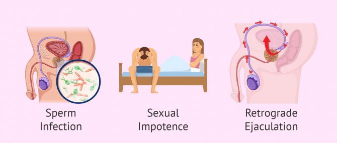 Imagen: Infertility by post-testicular factor