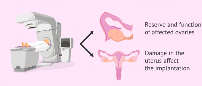 Imagen: Radiotherapy and female infertility
