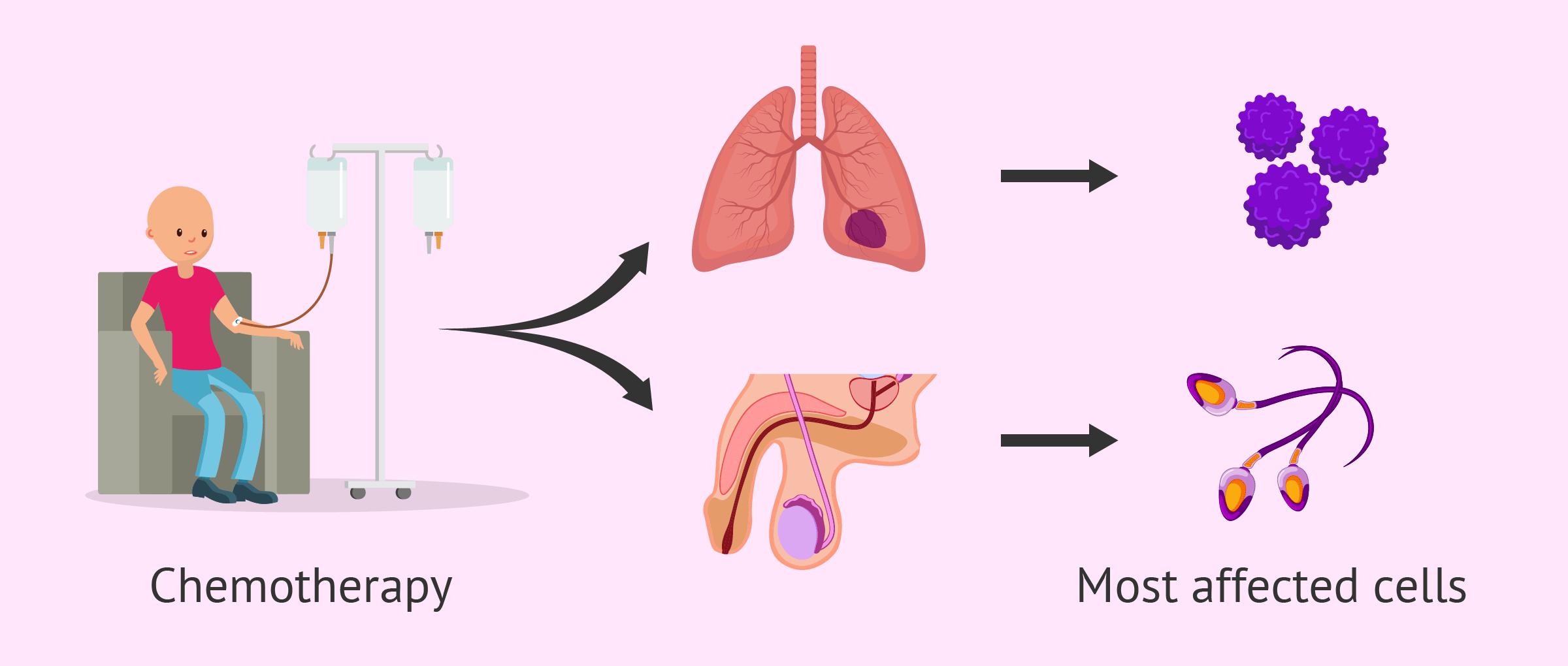 Chemotherapy masculine fertility