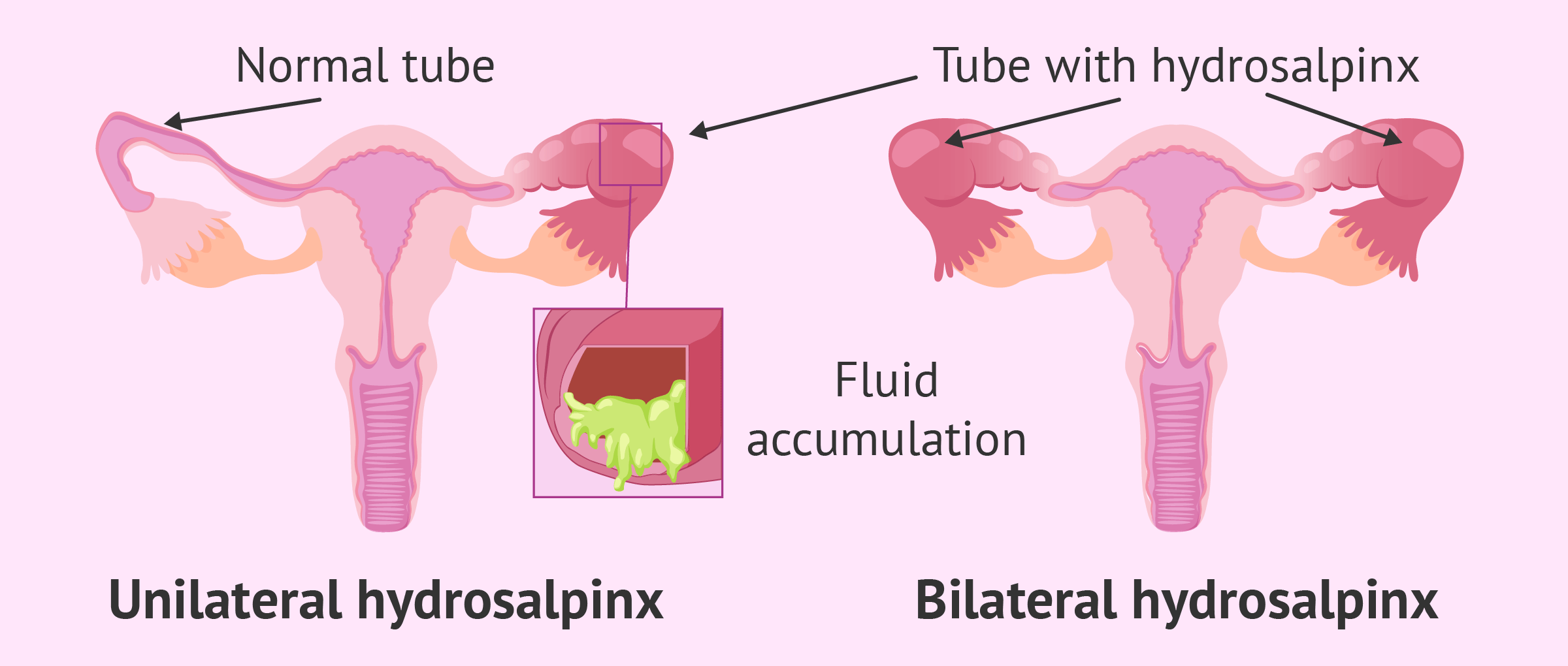 Hydrosalpinx in one or both tubes