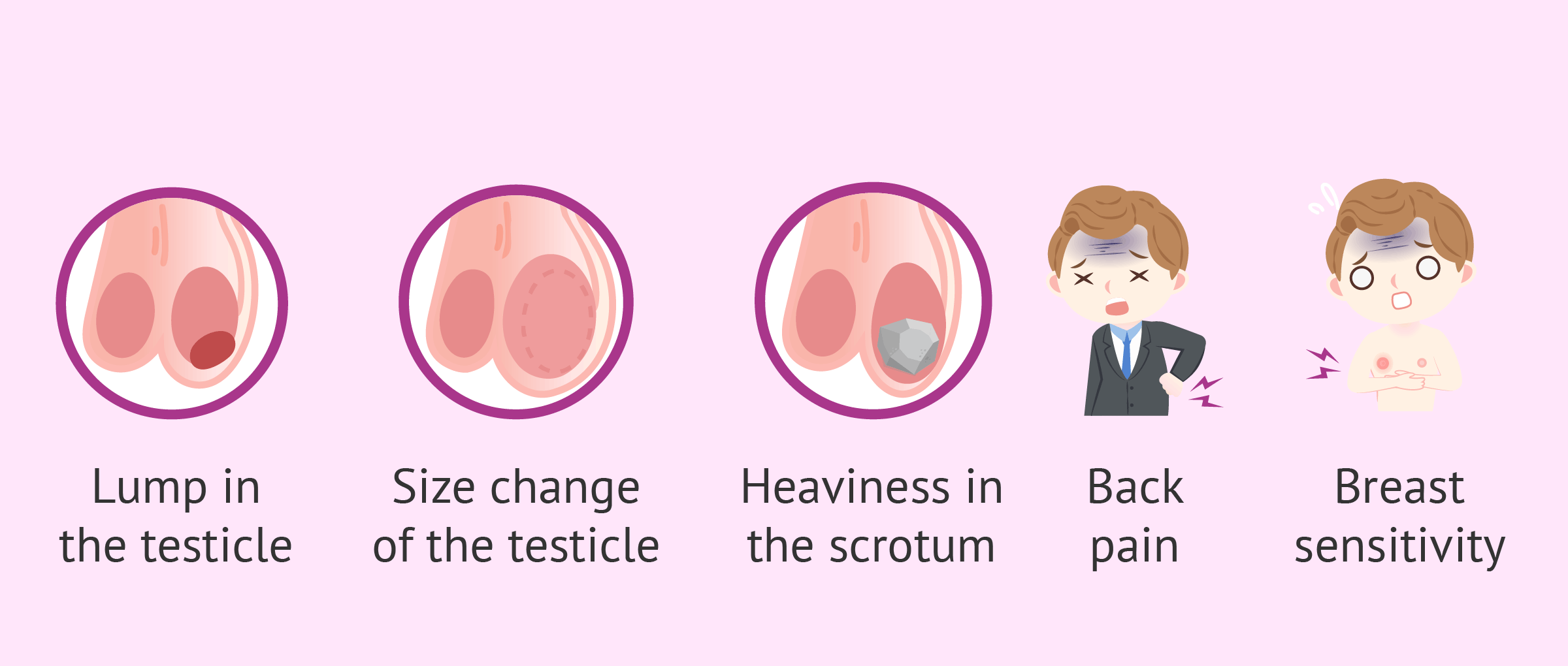 Testicular Cancer Symptoms