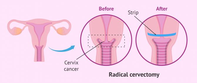 Imagen: cervicalectomy