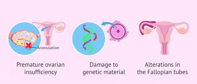Imagen: Fertility problems after treatment