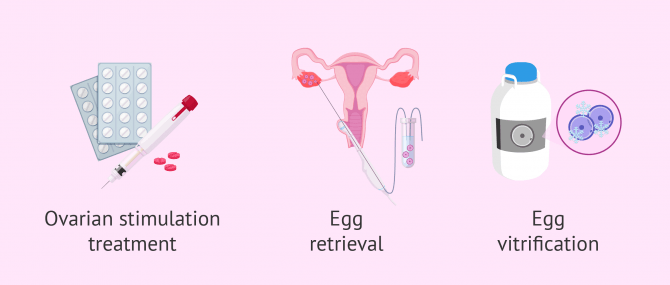Preserving Fertility in Women with Cancer