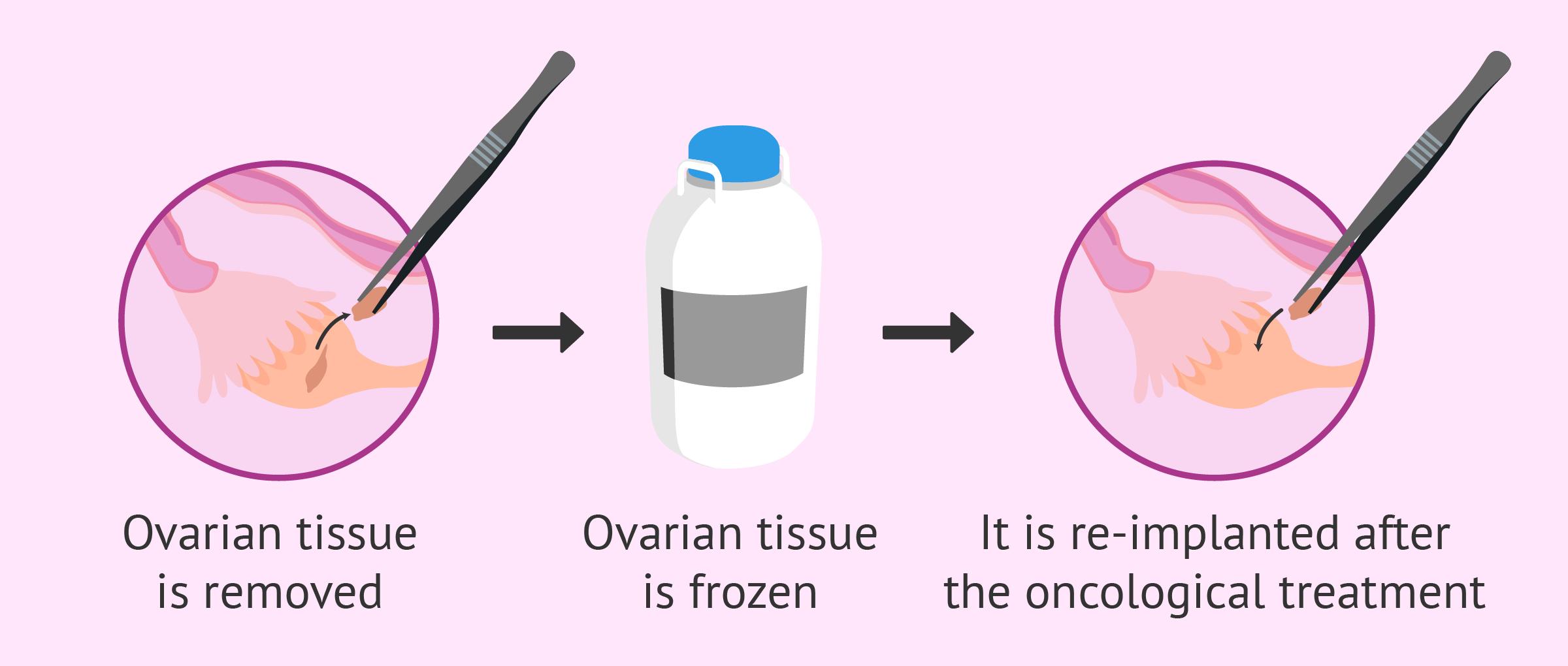 Ovarian tissue freezing
