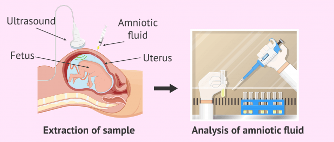 Invasive and Non-Invasive Prenatal Diagnostic Tests