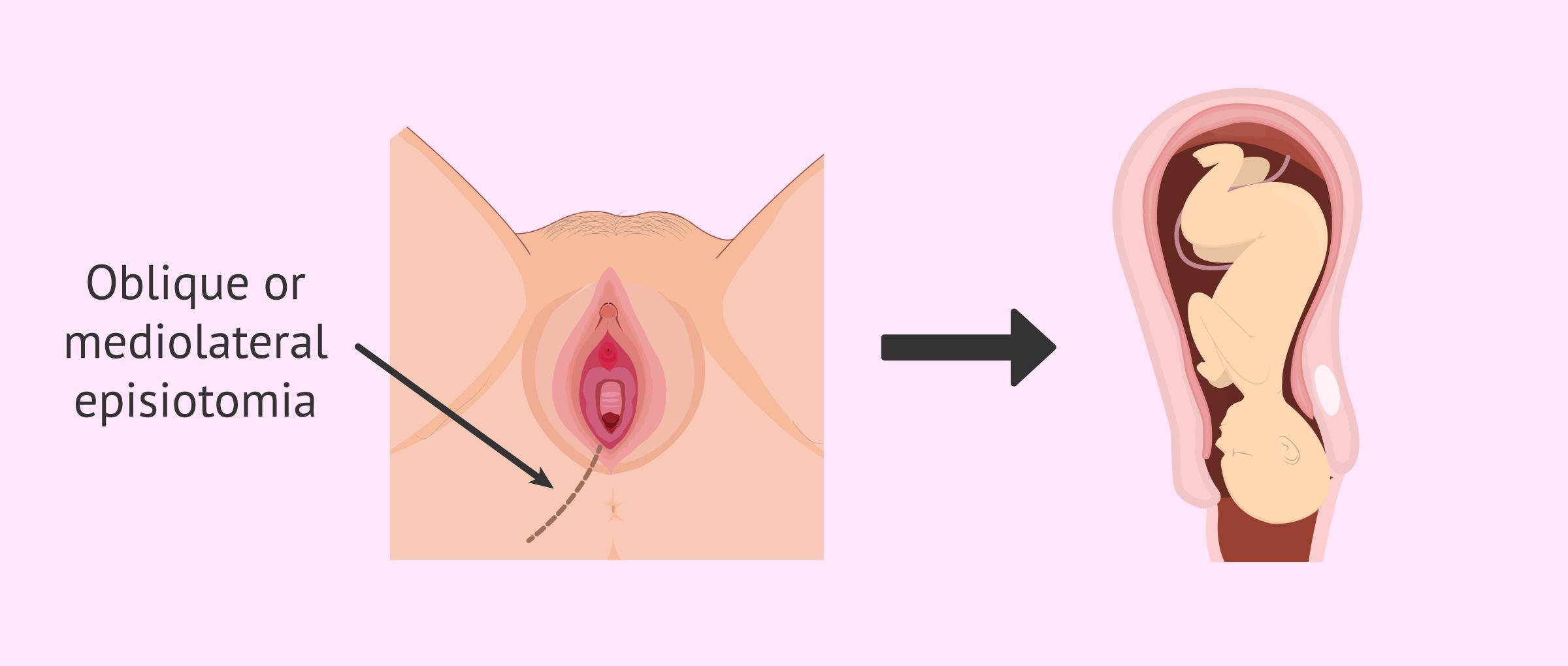 Imagen: Episiotomy for facilitating labor
