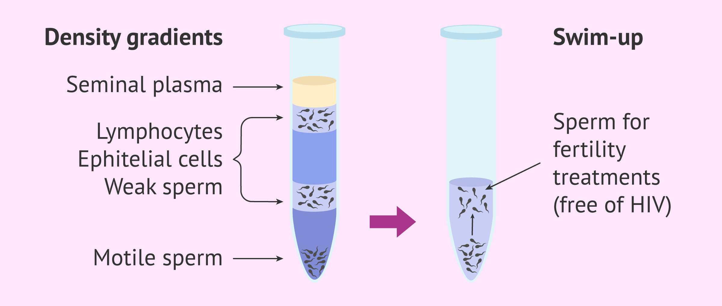 Imagen: Sperm washing process