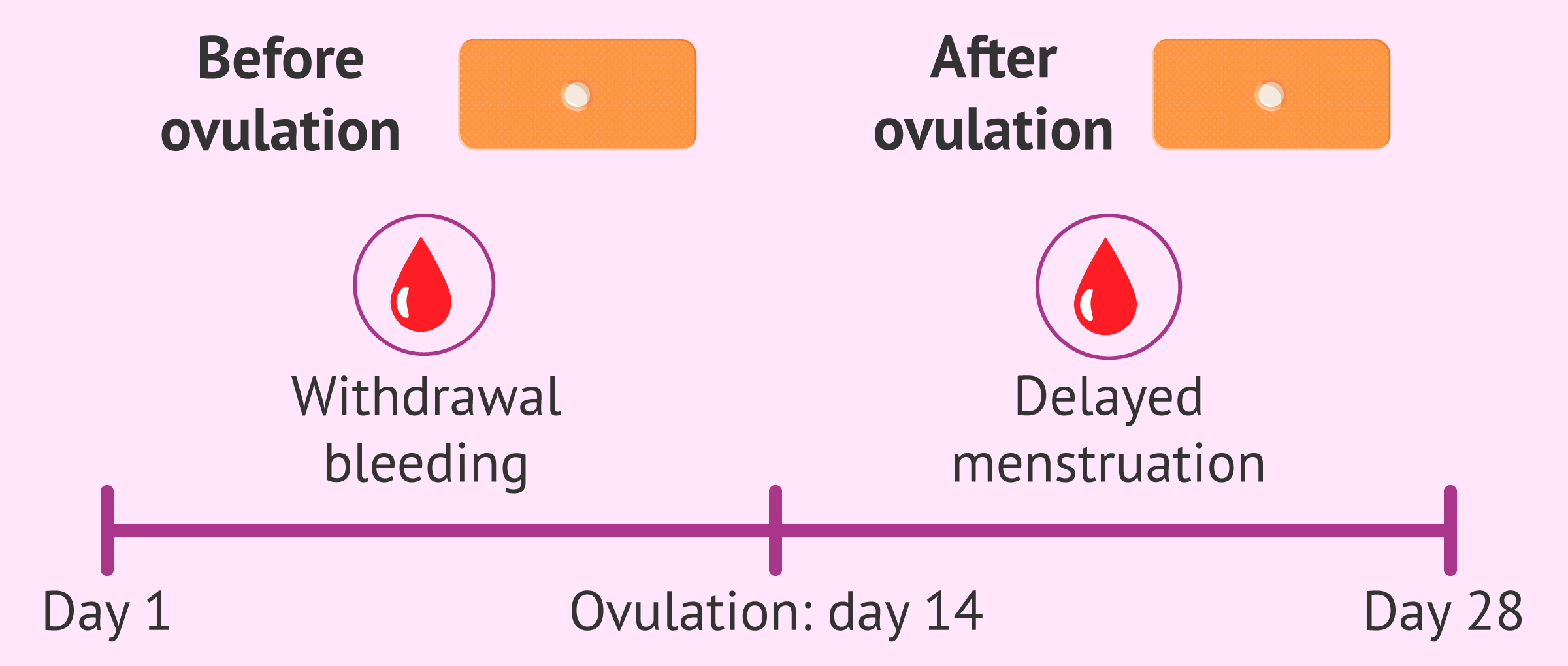 Imagen: Morning-after pill causes alterations in the menstrual cylce