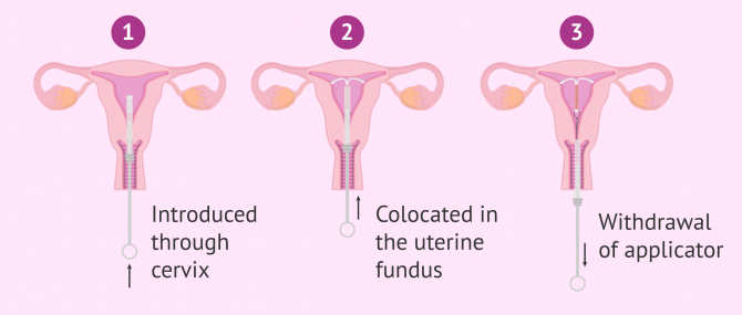 How Does the IUD Work and What are the Pros & Cons ?