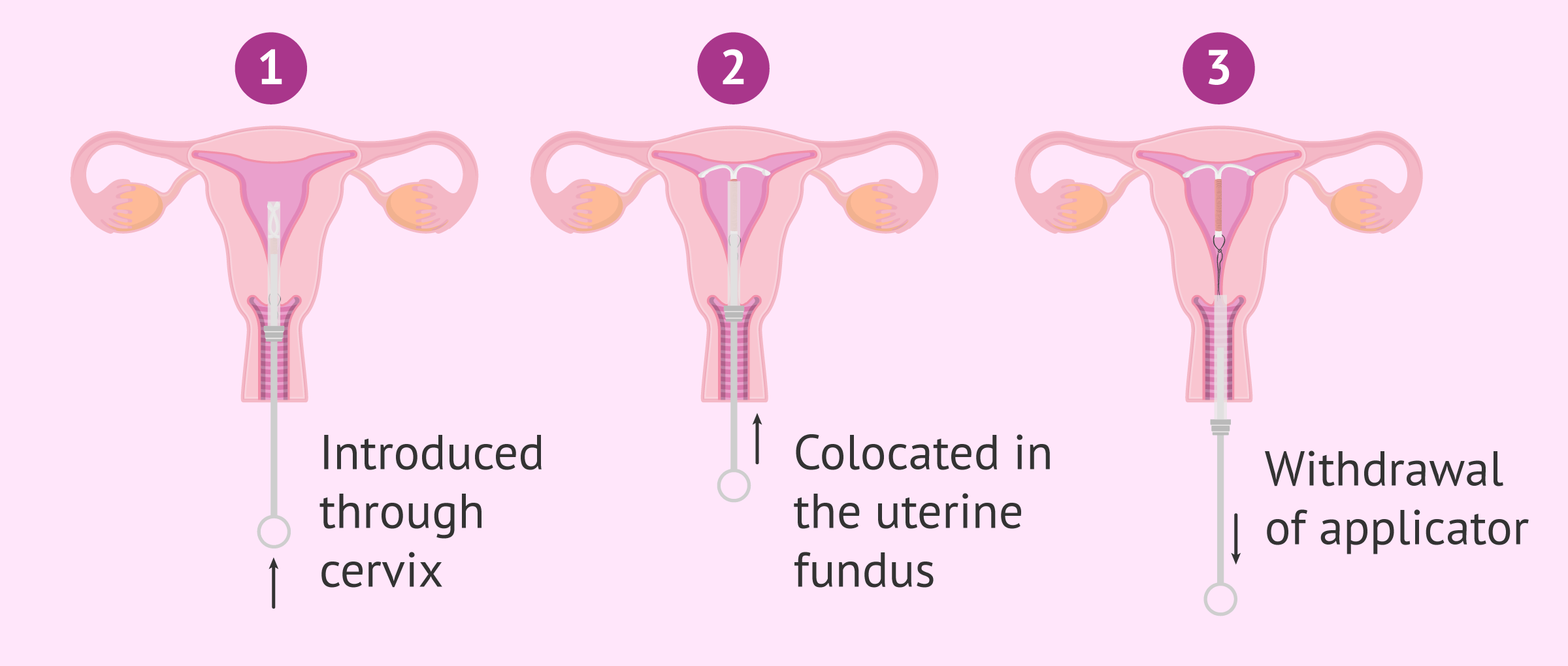 Application of IUD