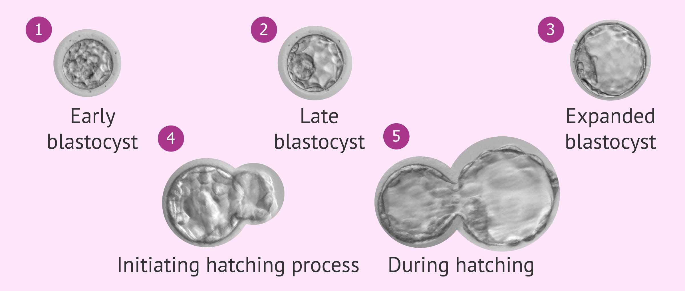 Blastocyst expansion rates