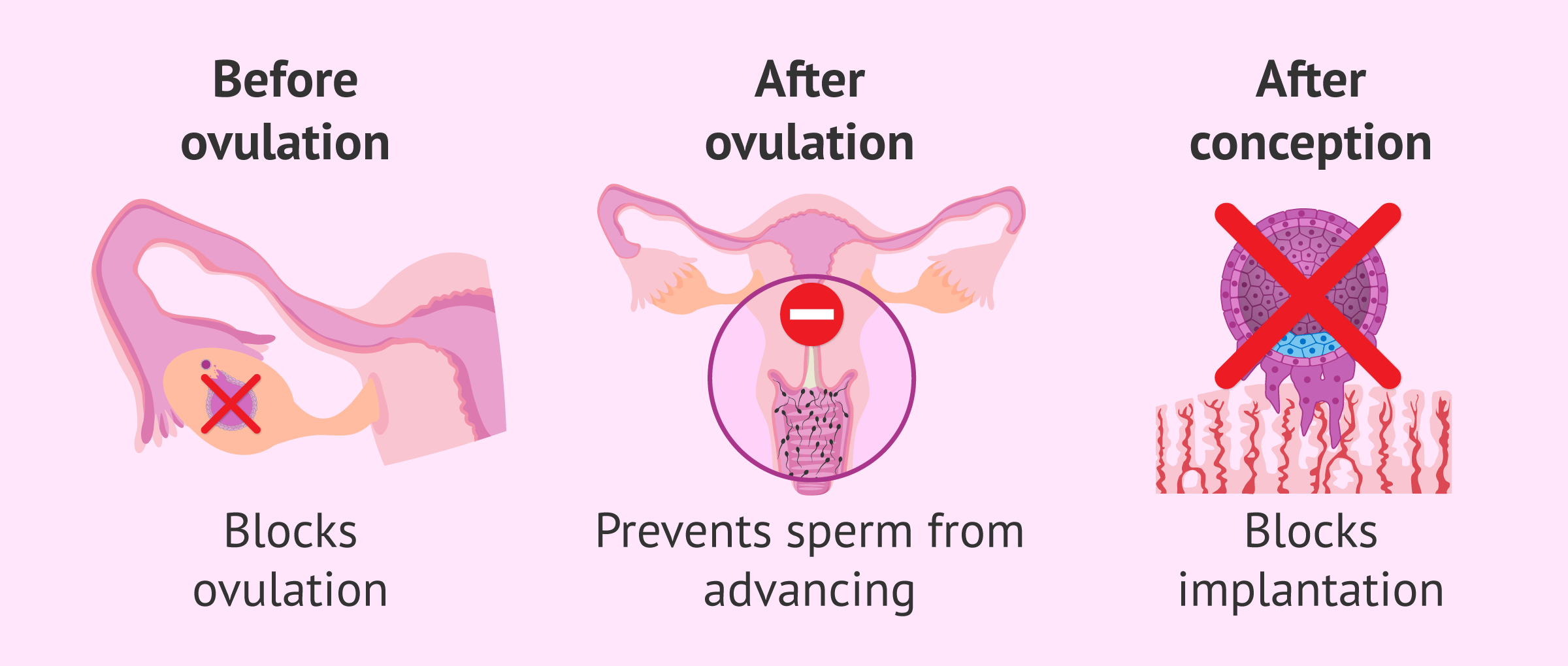Imagen: Mechanism of action of the morning-after pill
