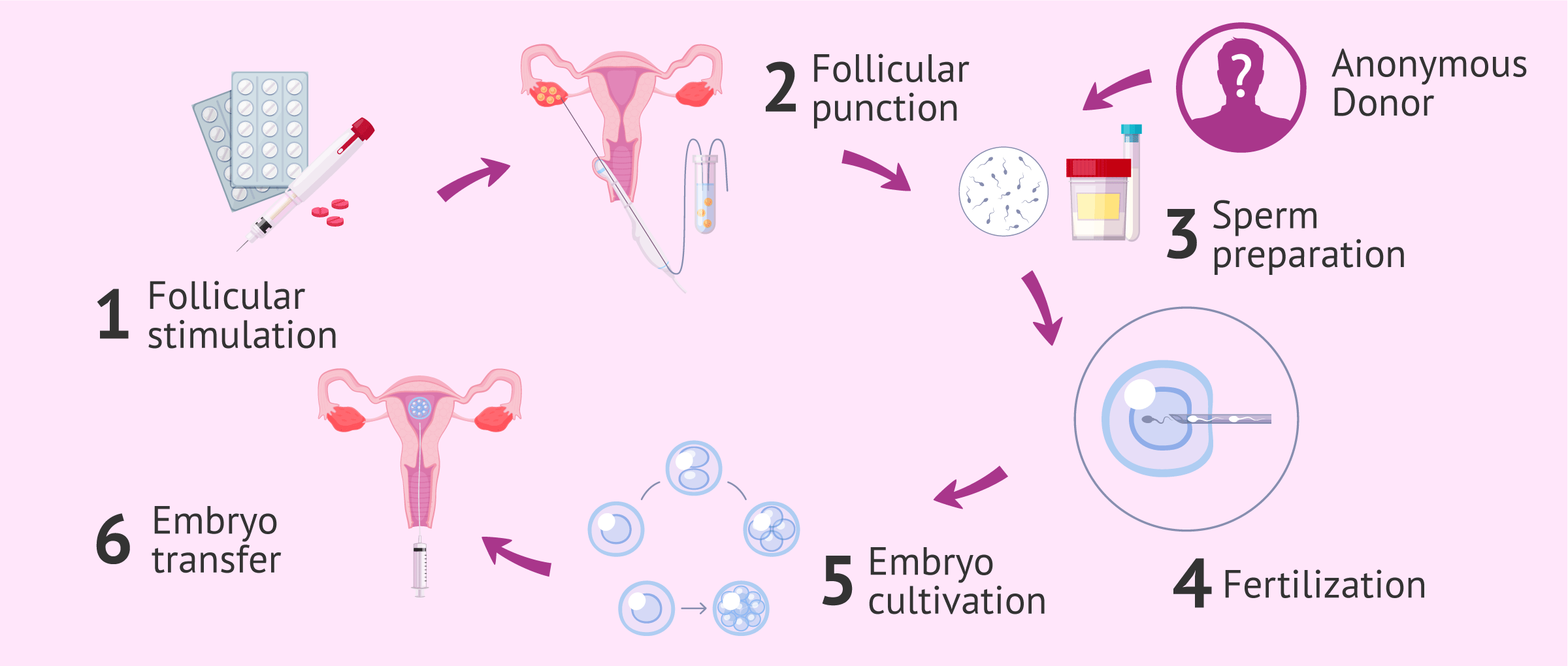 Imagen: In vitro fertilization for single mothers