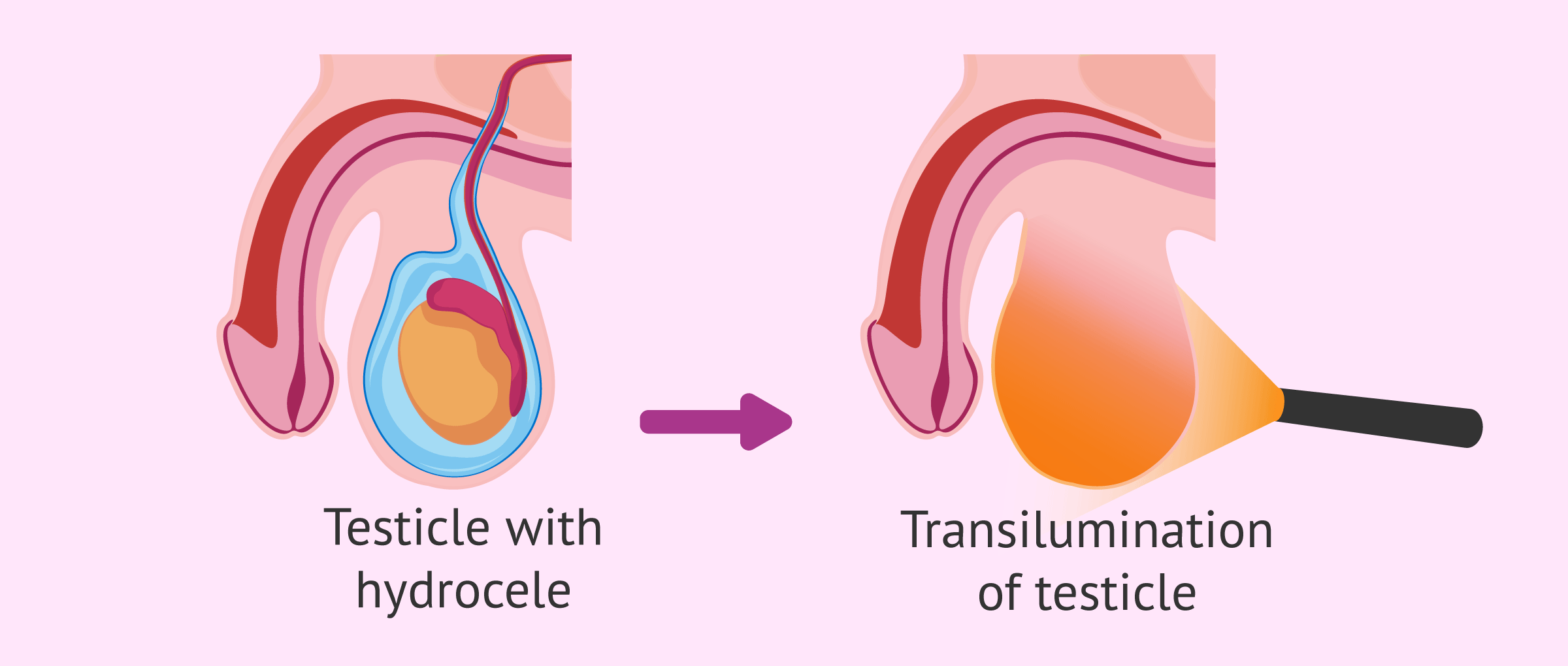 Imagen: Transilumination of the testicle