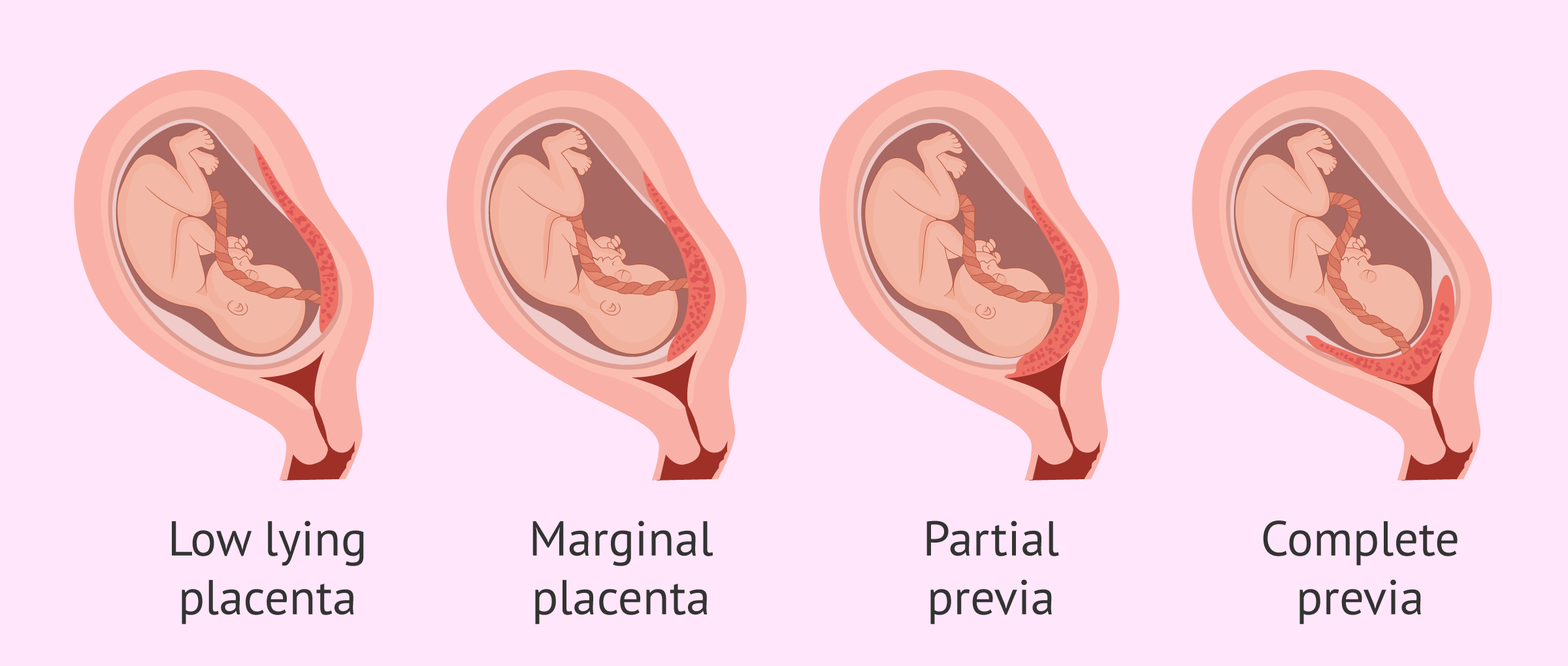 What Is Placenta Previa? Causes, Diagnosis and Labor
