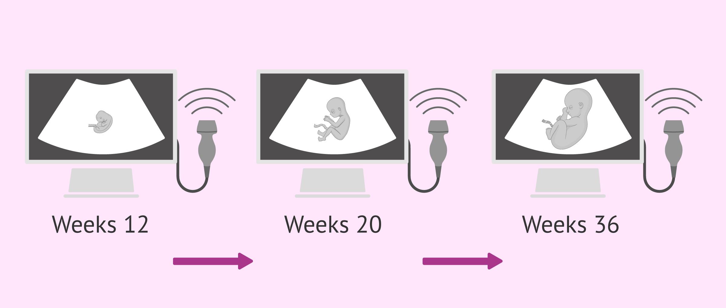 Imagen: Fetal ultrasounds during pregnancy