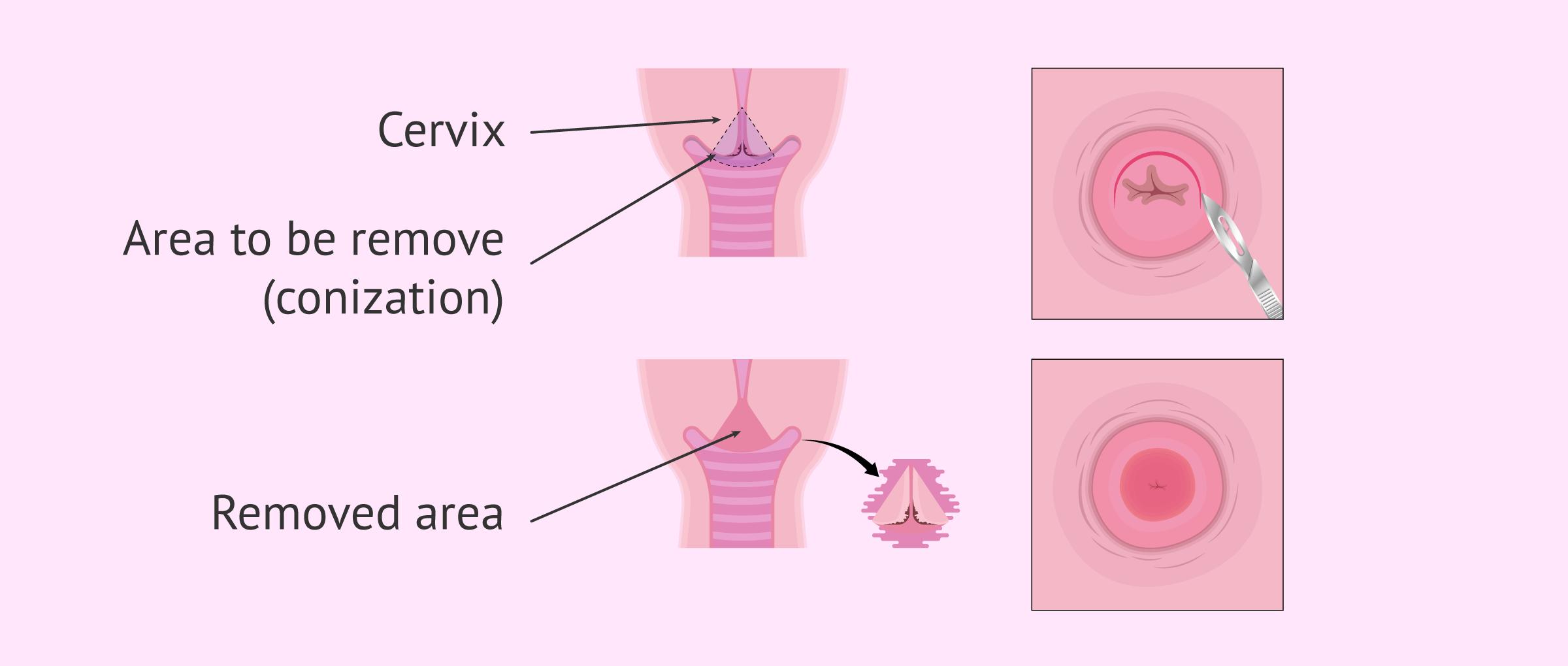 Imagen: Cervix conization