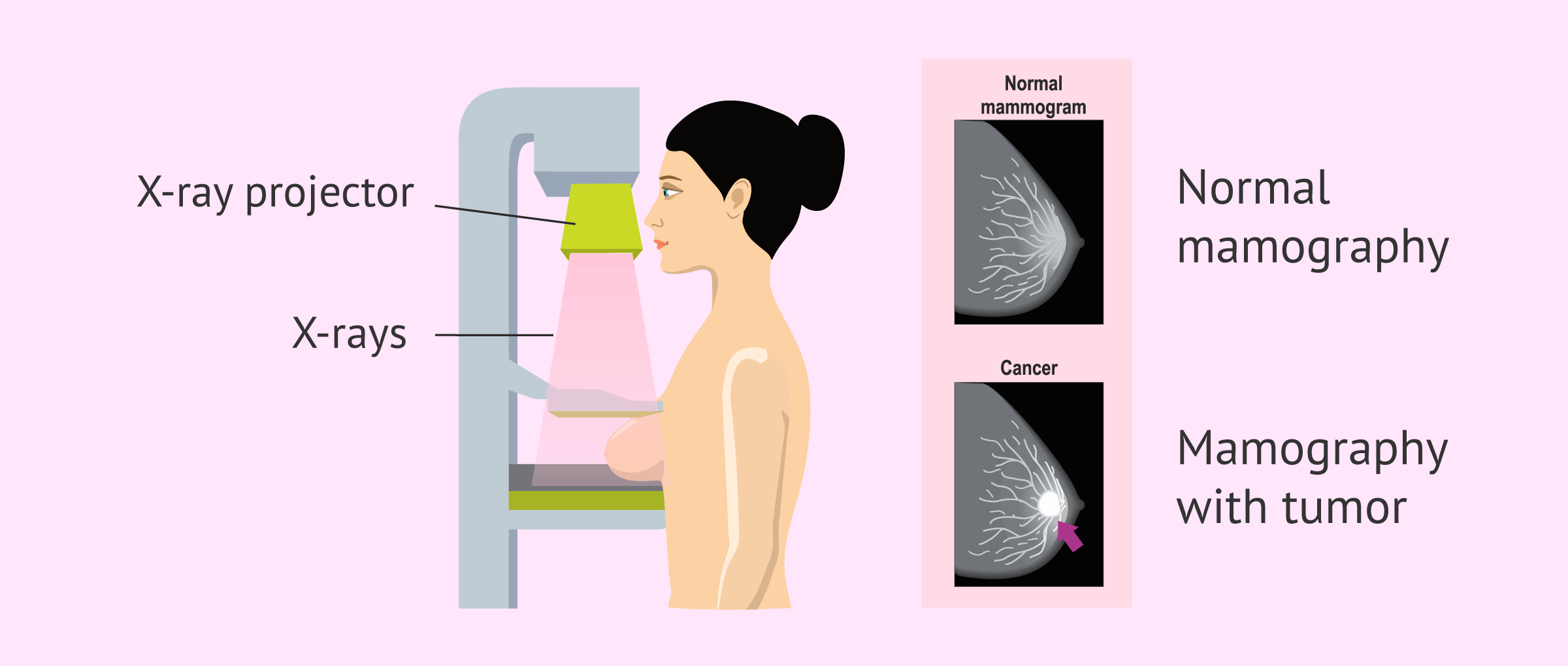 Imagen: What is Mammography?