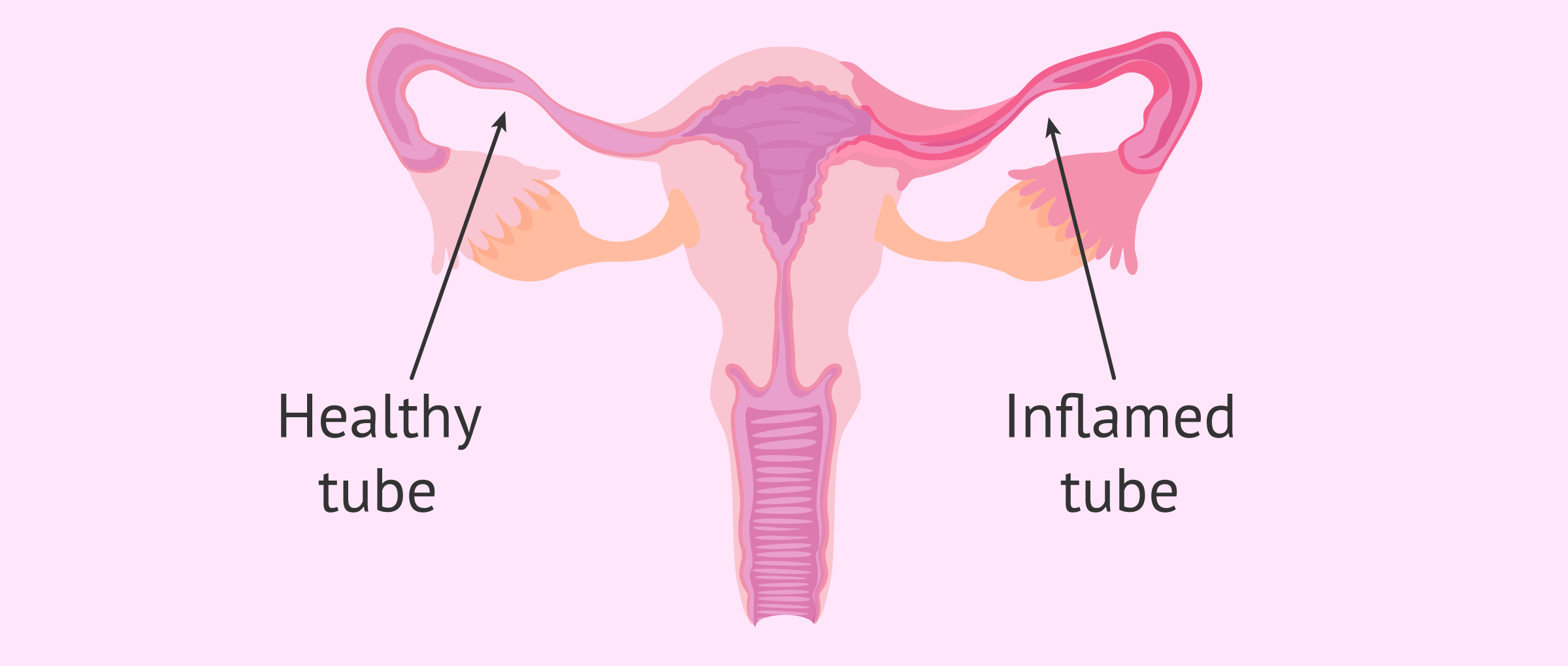 Inflamed tube (Salpingitis)