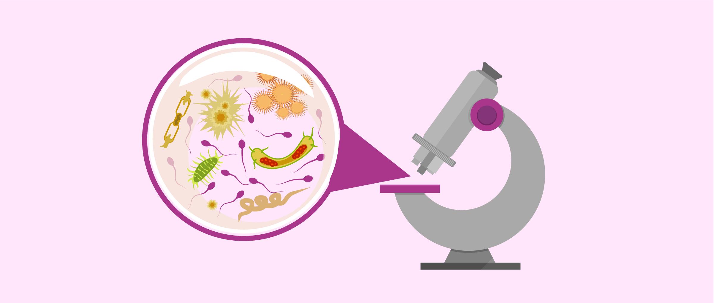 analyzing sperm quality
