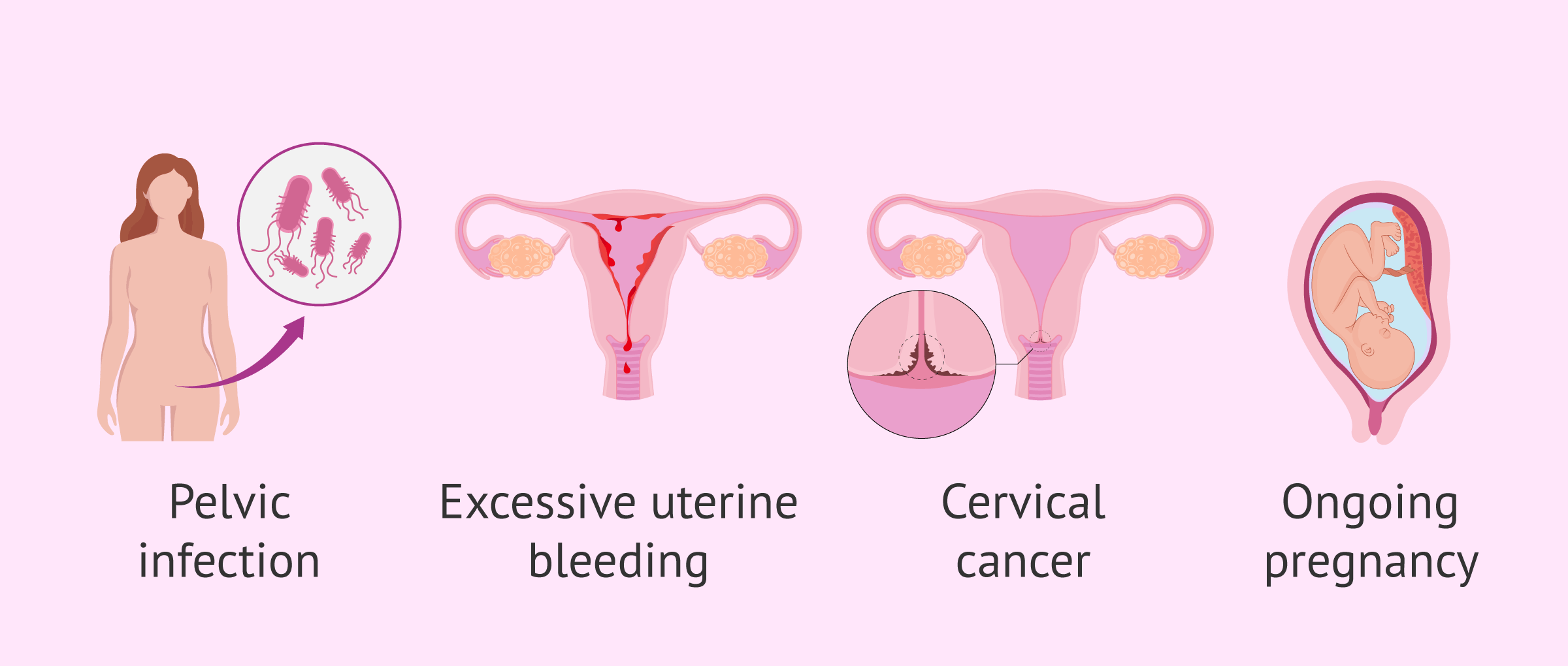 Contraindication of hysteroscopy