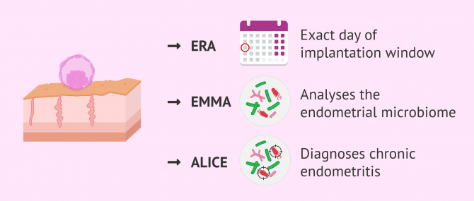 What Is The EndomeTRIO Test And What Is It Used For?