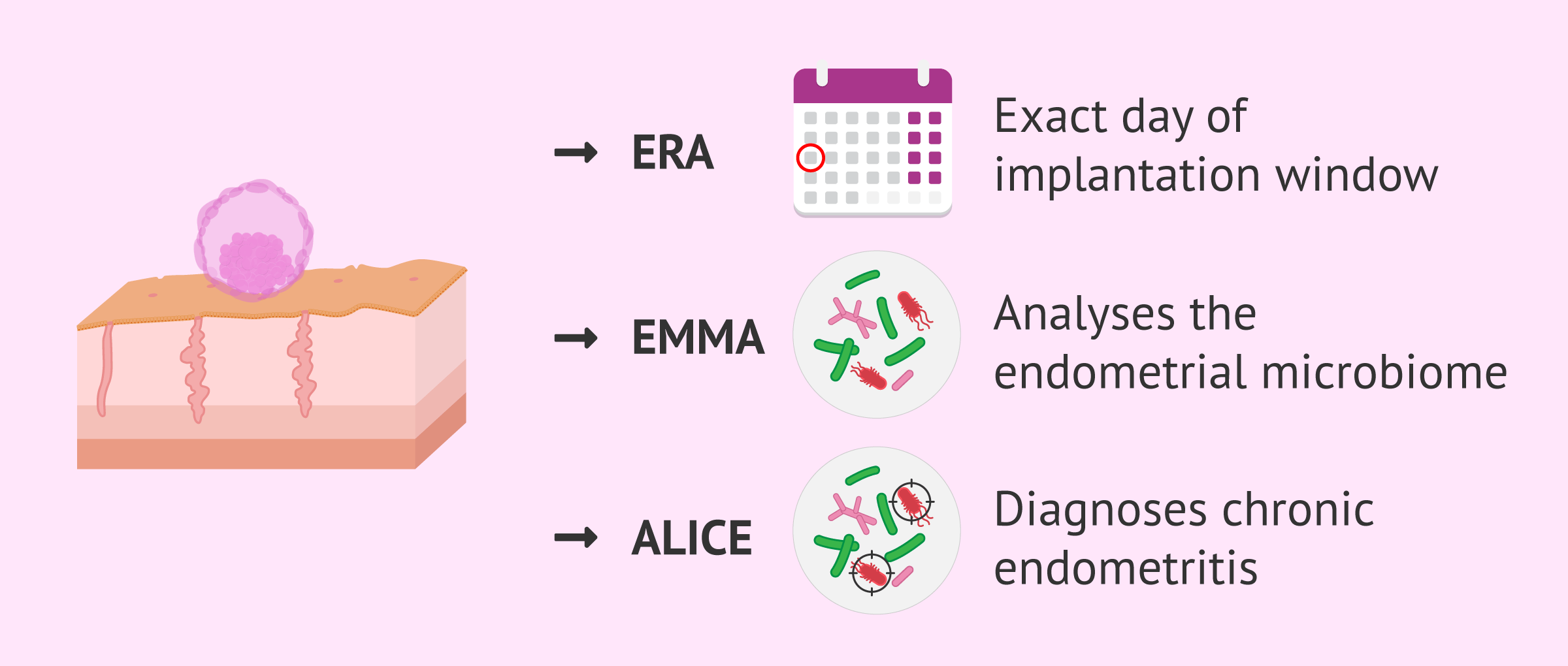 EndomeTRIO: ERA, EMMA and ALICE Tests