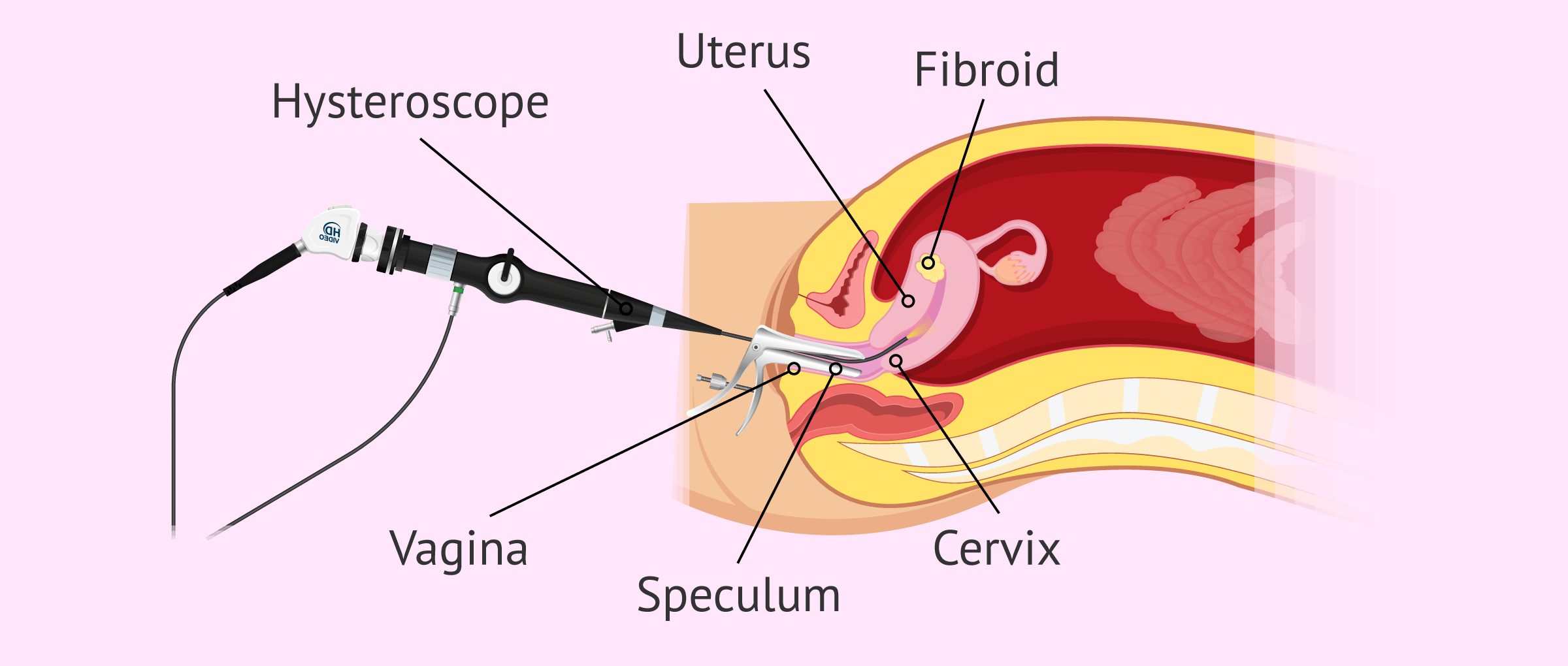 Imagen: Removing myoms with hysteroscopy