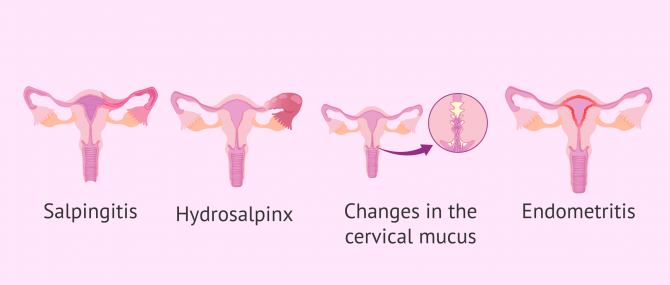Imagen: Manifestations of STDs in female fertility