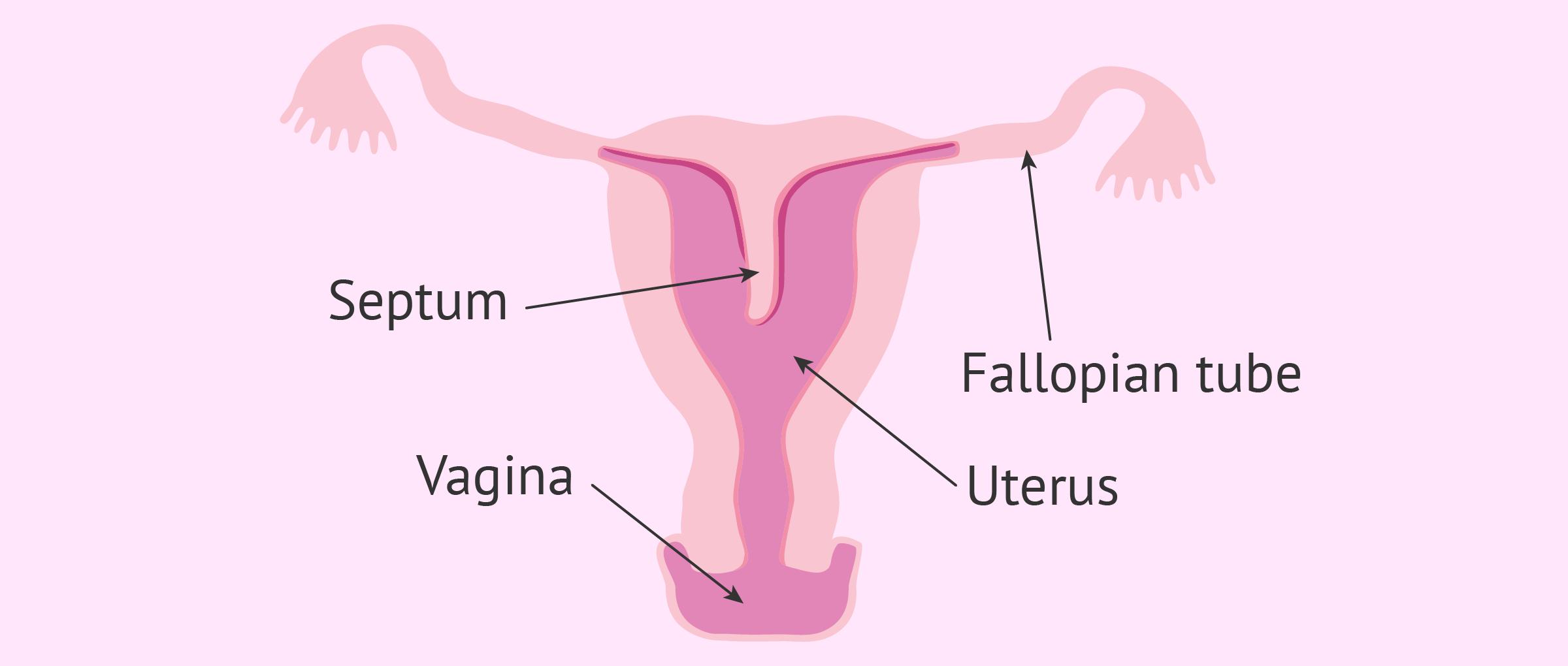 Imagen: Septate Uterus