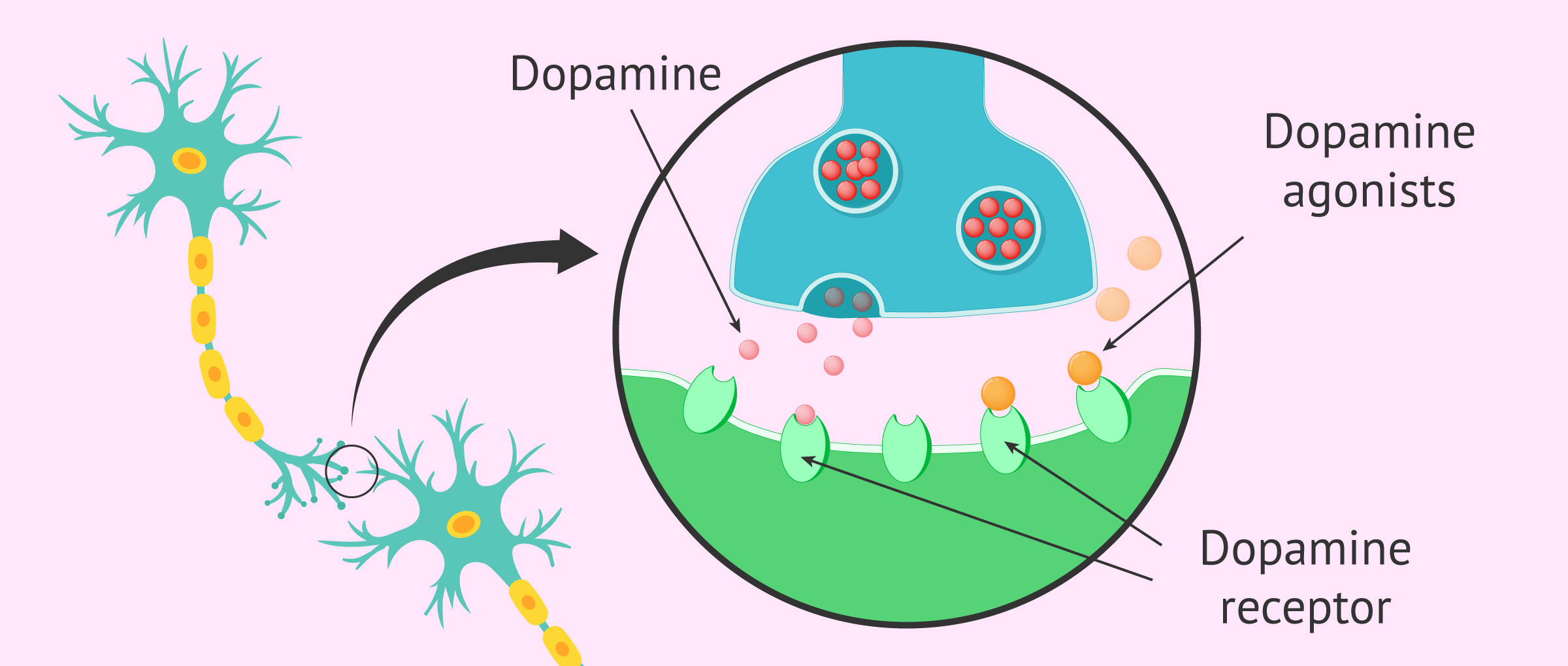 Treatment of hyperprolactinemia with dopamine agonists
