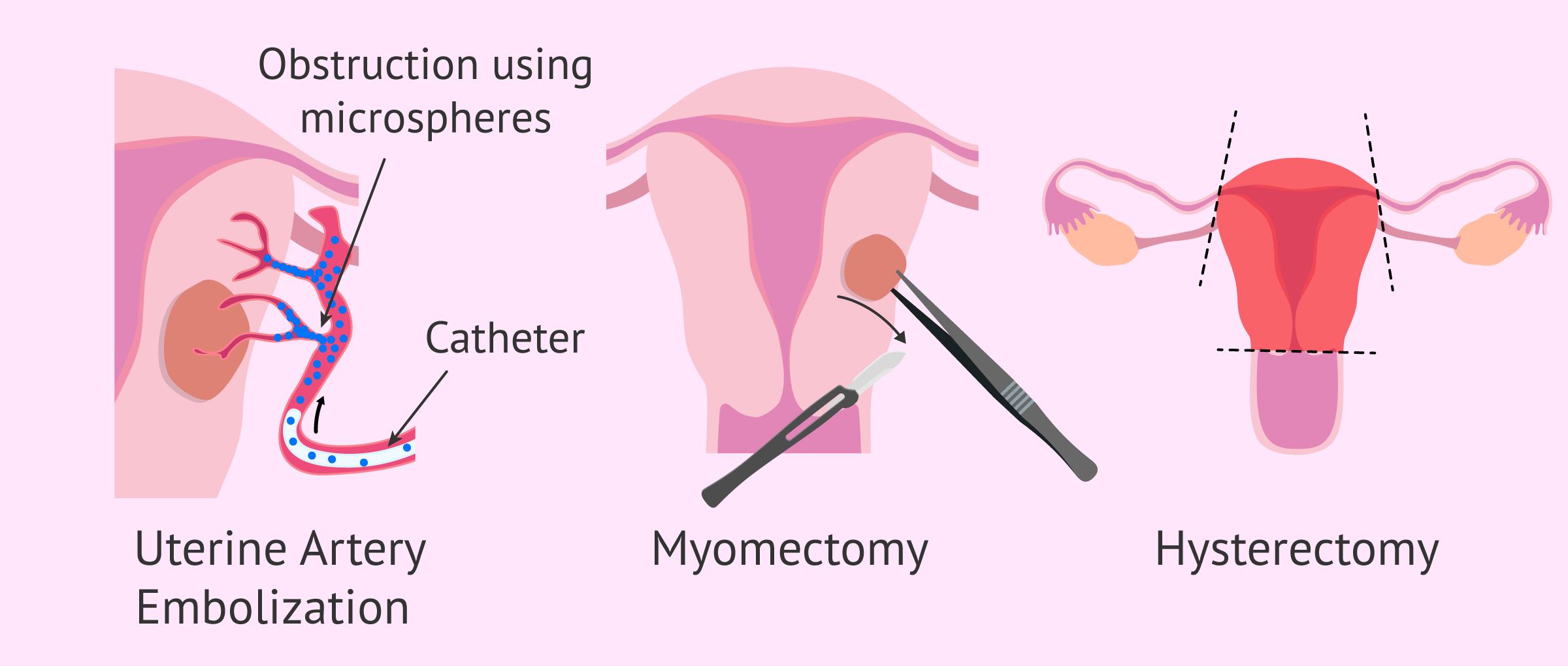 Imagen: Invasive treatments for myomatosis