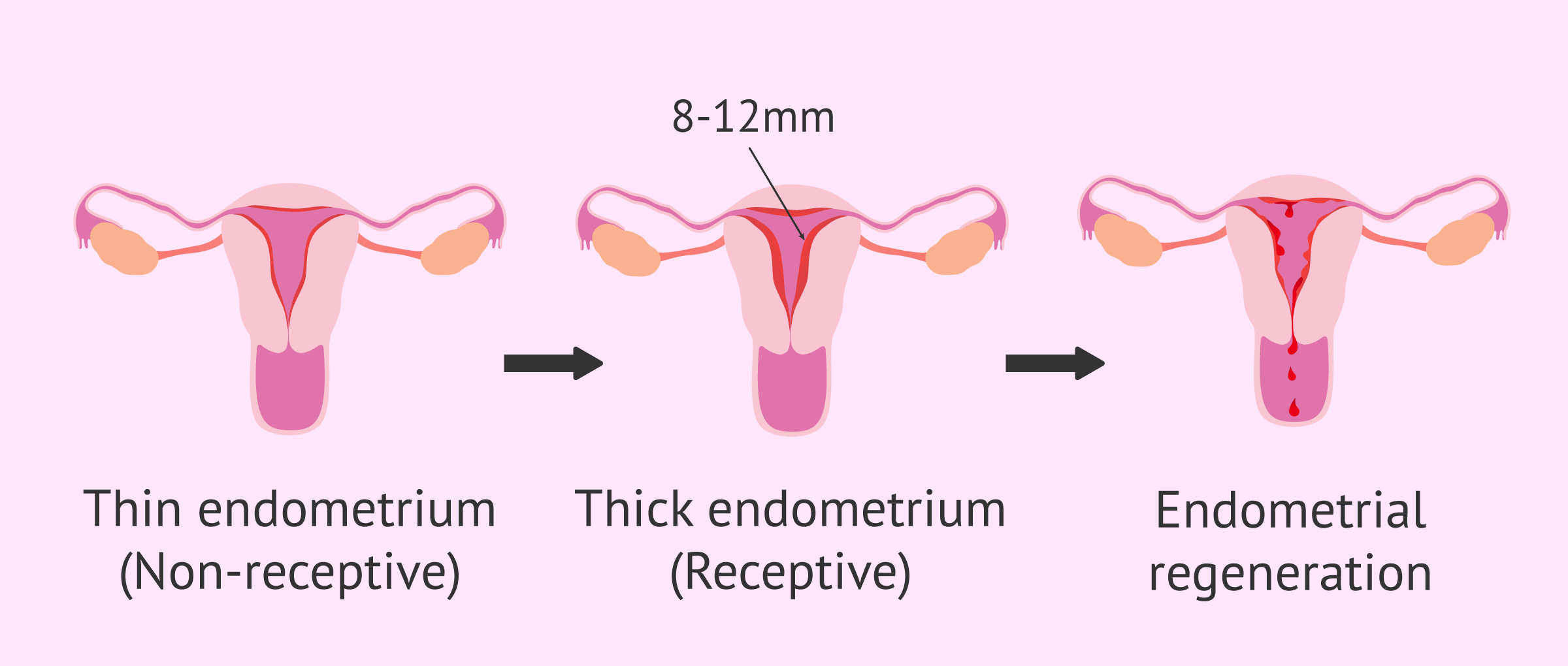 Imagen: Stages in endometrium and uterine receptivity