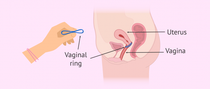 Vaginal Ring As Mean Of Contraception: How Does It Work?