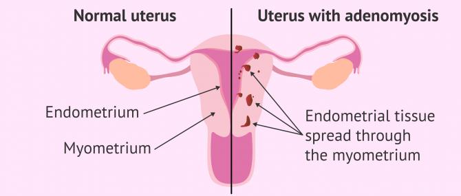 Imagen: Comparation between healthy uterus and uterine adenomyosis