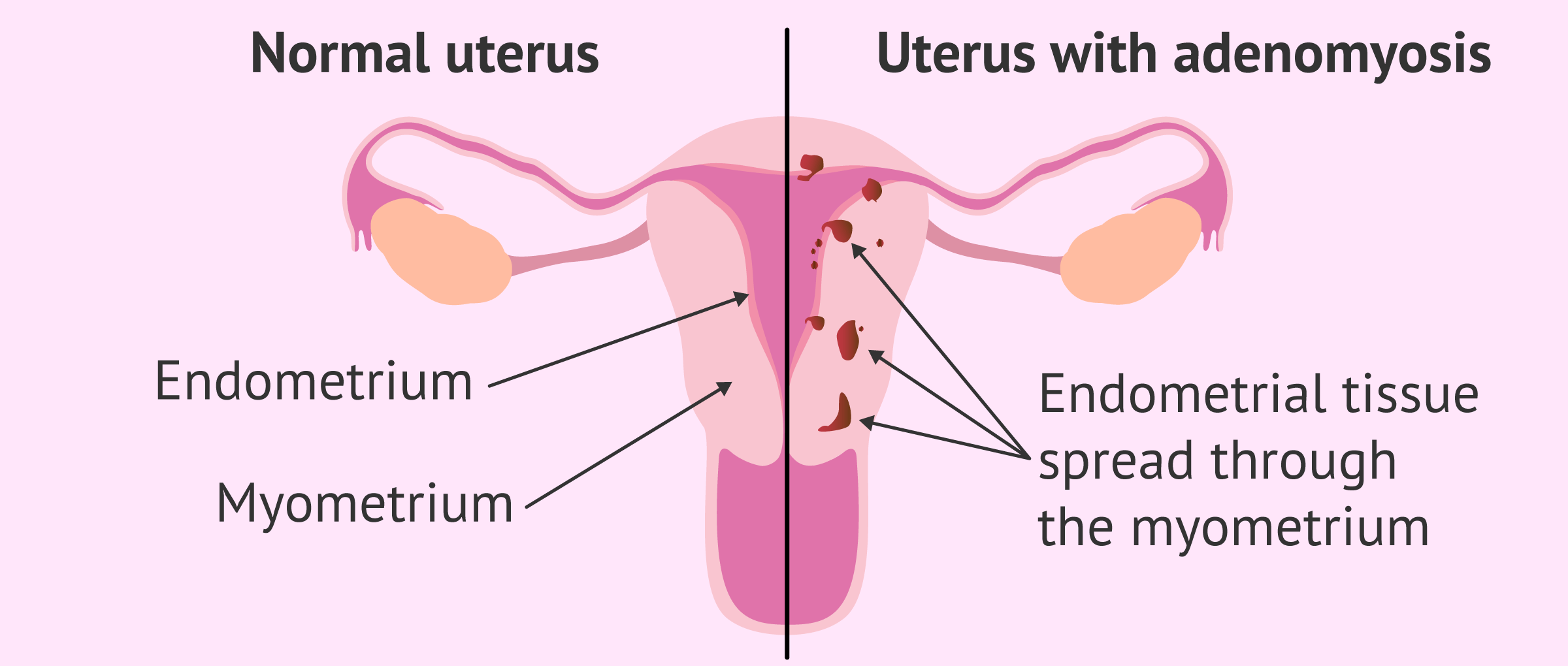 Comparation between healthy uterus and uterine adenomyosis