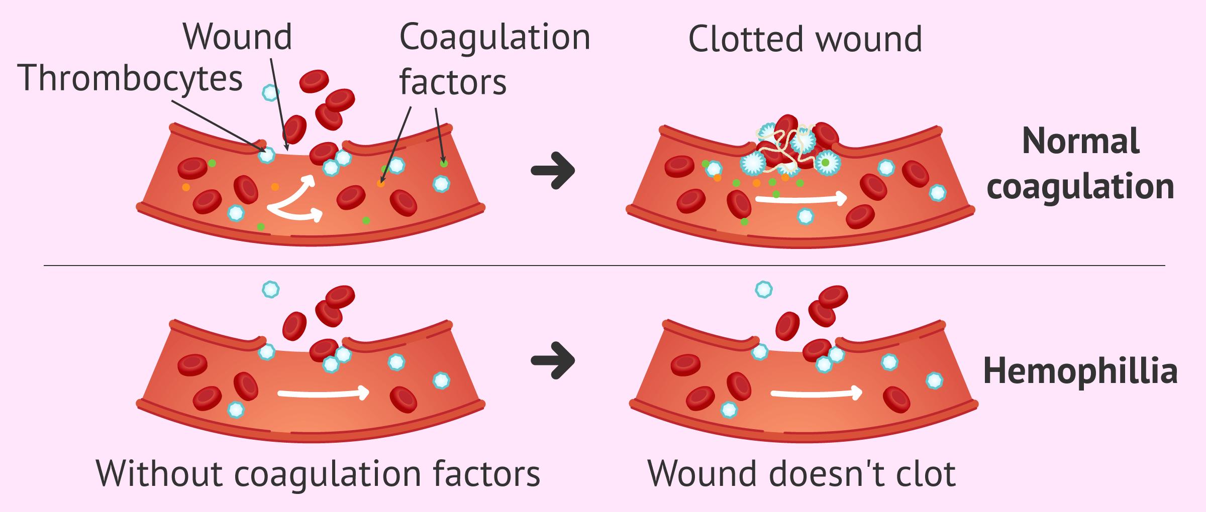 Clotting problems in hemophilia