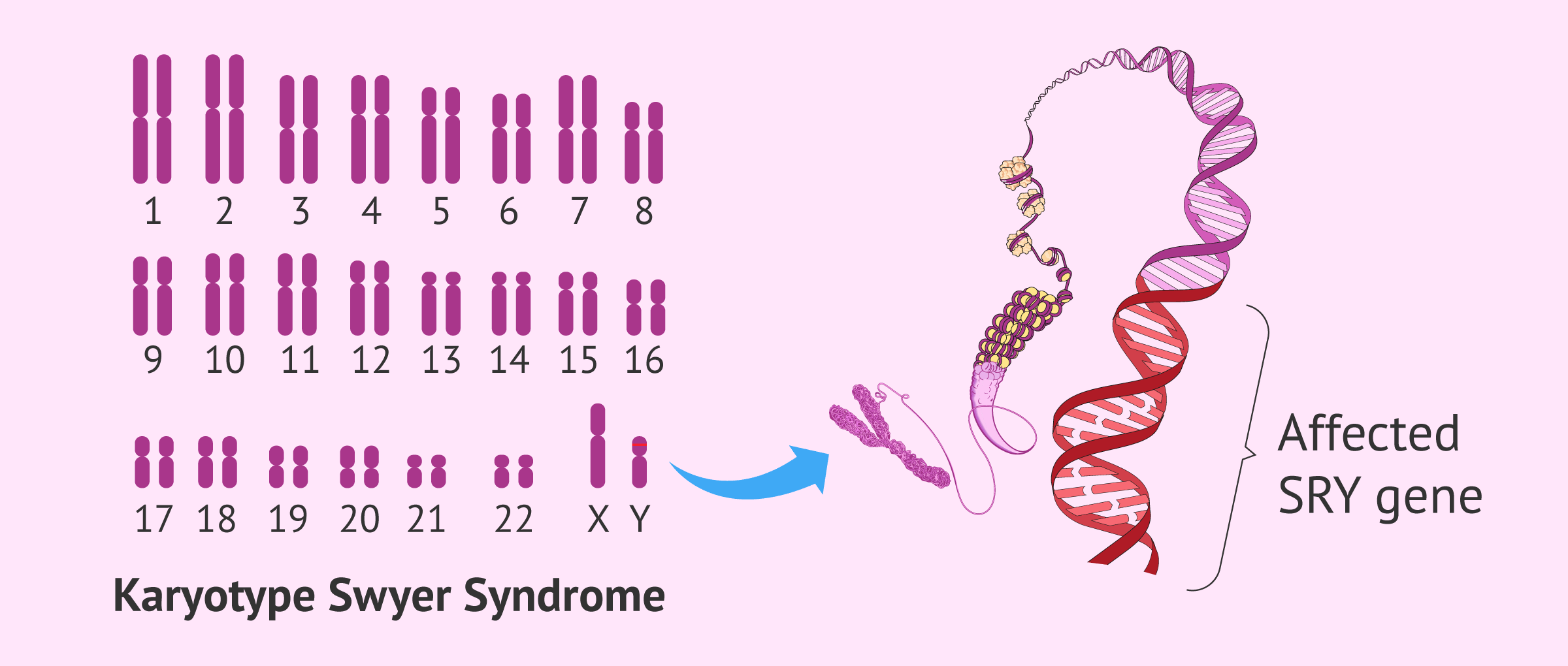 Karyotype in Swyer syndrome