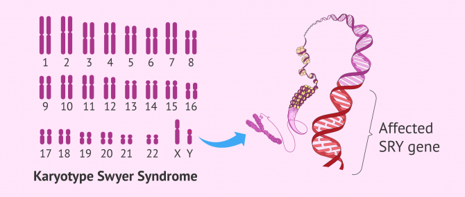Swyer Syndrome: Causes, Clinical Manifestations and Pregnancy