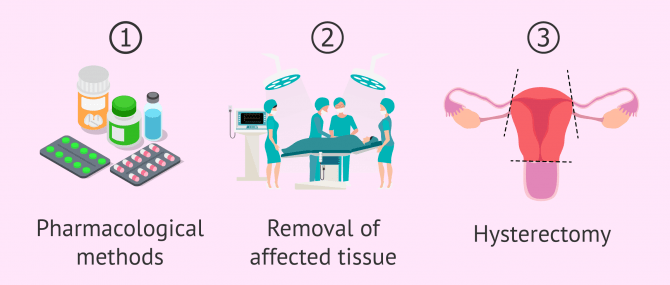 Imagen: Treatment of adenomyosis