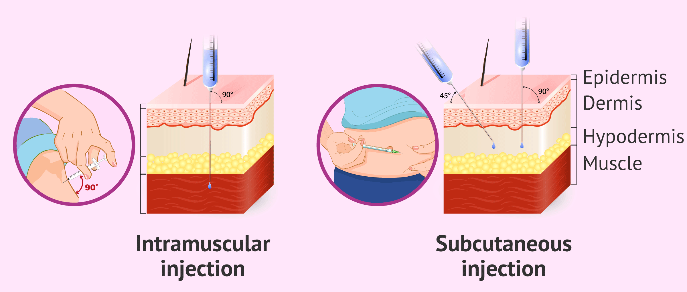 Types of Decapeptyl injection: intramuscular (monthly) and subcutanean (daily)